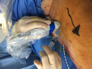 Local anaesthetic around the vein